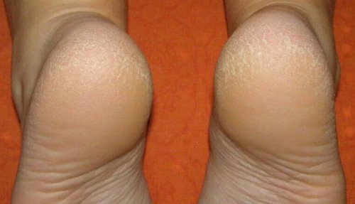 шелушение на ступнях